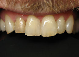 BEFORE REPLACEMENT CROWNS