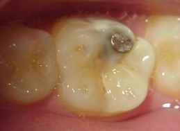 BEFORE - WITH AMALGAM FILLING