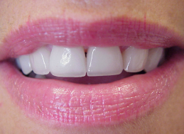 AFTER CROWNS & VENEERS
